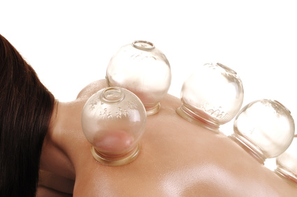 cupping massage - a young woman